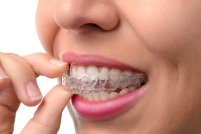 orthodontics, Clinton NJ